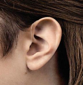 Oreille avec un appareil auditif contour d'oreille