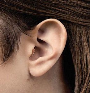 Appareil auditif inséré dans l'oreille