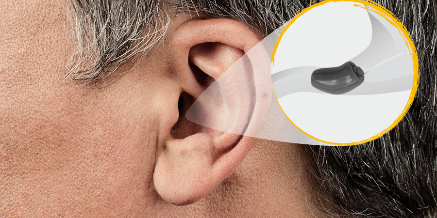 Oreille avec représentation schématique d'un appareil auditif